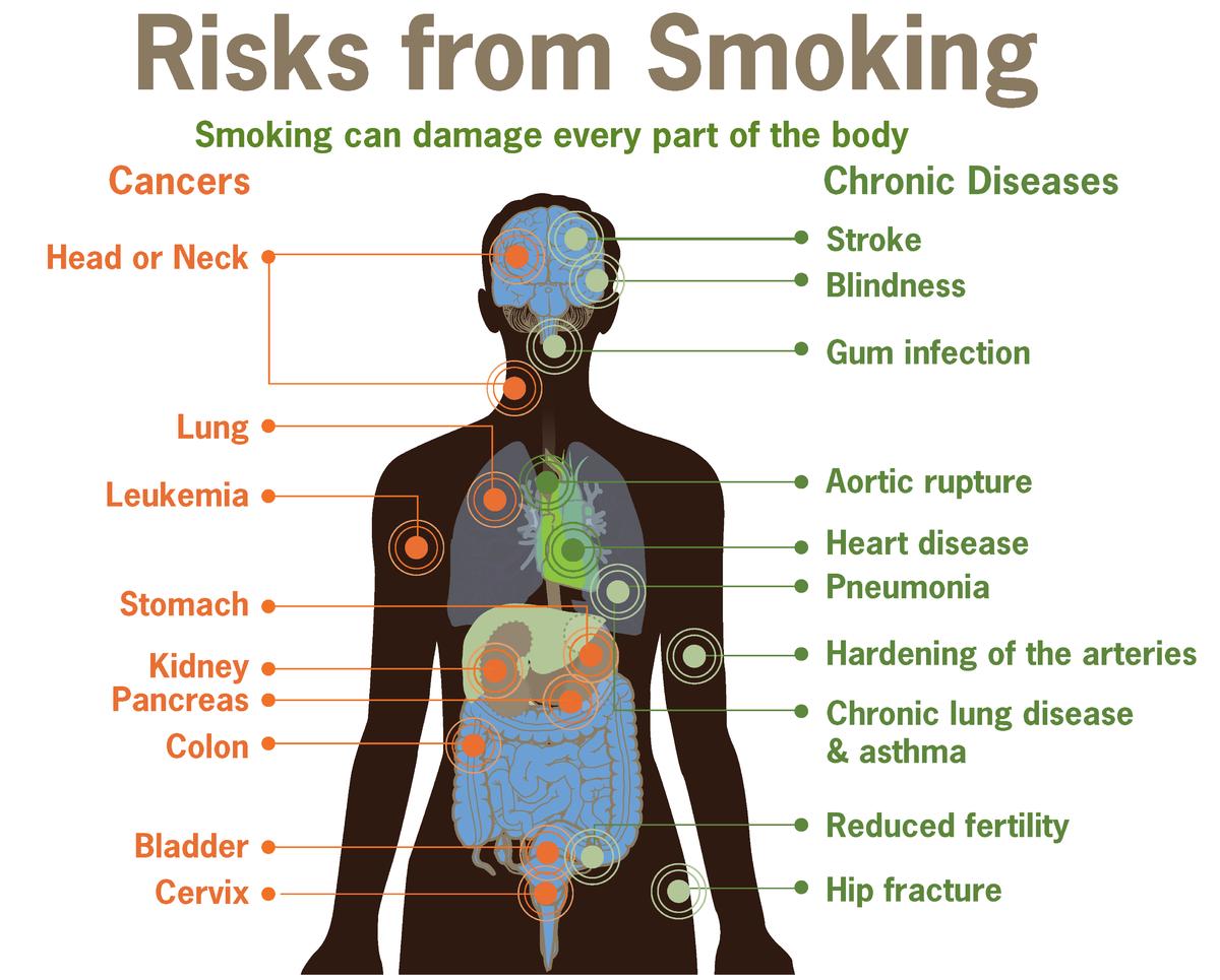 Risks form smoking