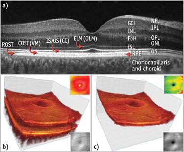 Segmentation of OCT Scans using Deformable Models