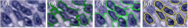 Figure 1. Segmentation results on three methods on arbitrarily choosen patch. From left to right: a. Original image, b. Otsu, c. ISO, d. Minimum-model.