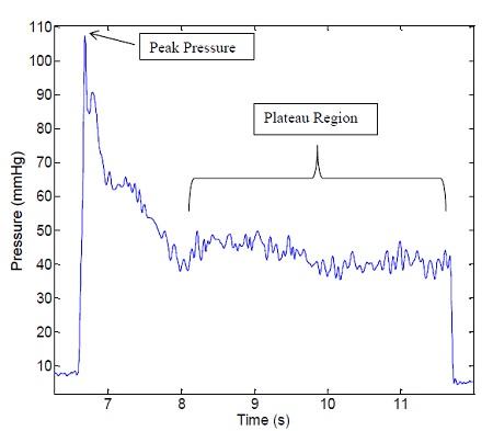 Typical pressure profile indicating peak pressure and plateau region